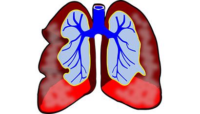 'Astma verhoogt kans op pre-eclampsie'